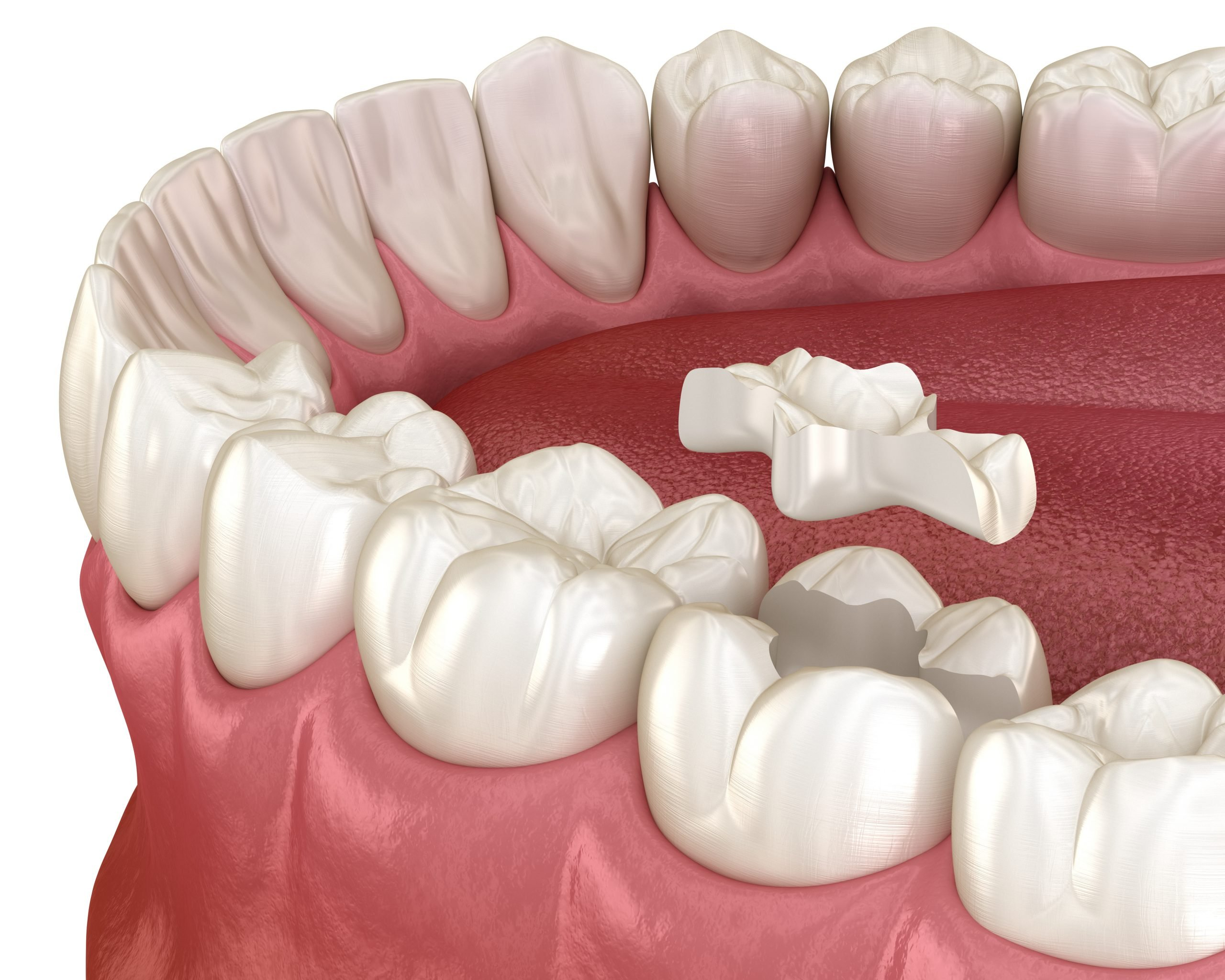 Inlay ceramic crown installation in to the tooth. Medically accurate 3D illustration of human teeth treatment